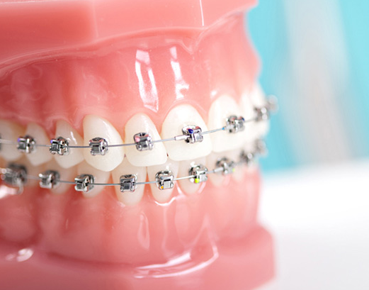 cebu dental braces